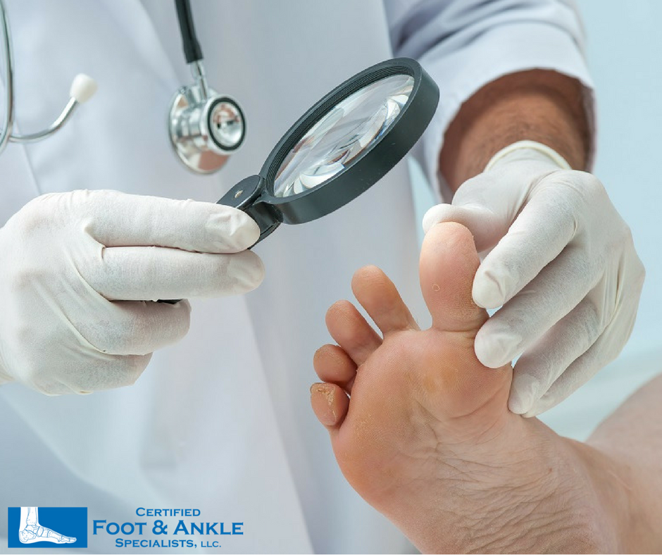 Foot and Ankle Specialists Boca Raton Florida